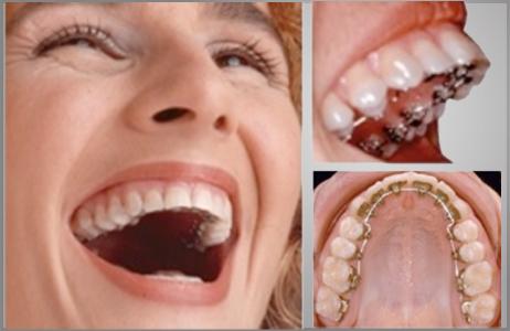 Tratamientos dentales dental bugambilias - Como alinear los dientes en casa sin brackets ...
