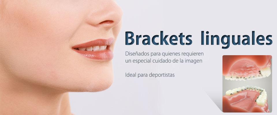 Dental bugambilias todas las especialidades dentales en un solo lugar - Como alinear los dientes en casa sin brackets ...